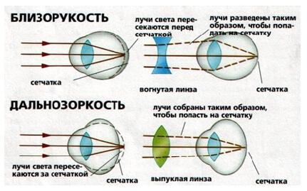 Картинки по запросу дальнозоркость схема