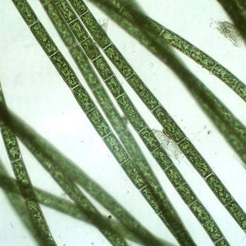 Нитчатая водоросль